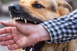 Steps To Take After A Dog Bite Accident